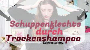 SCHUPPENFLECHTE durch TROCKENSHAMPOO | MEINE ERFAHRUNGEN | TIPPS & TRICKS