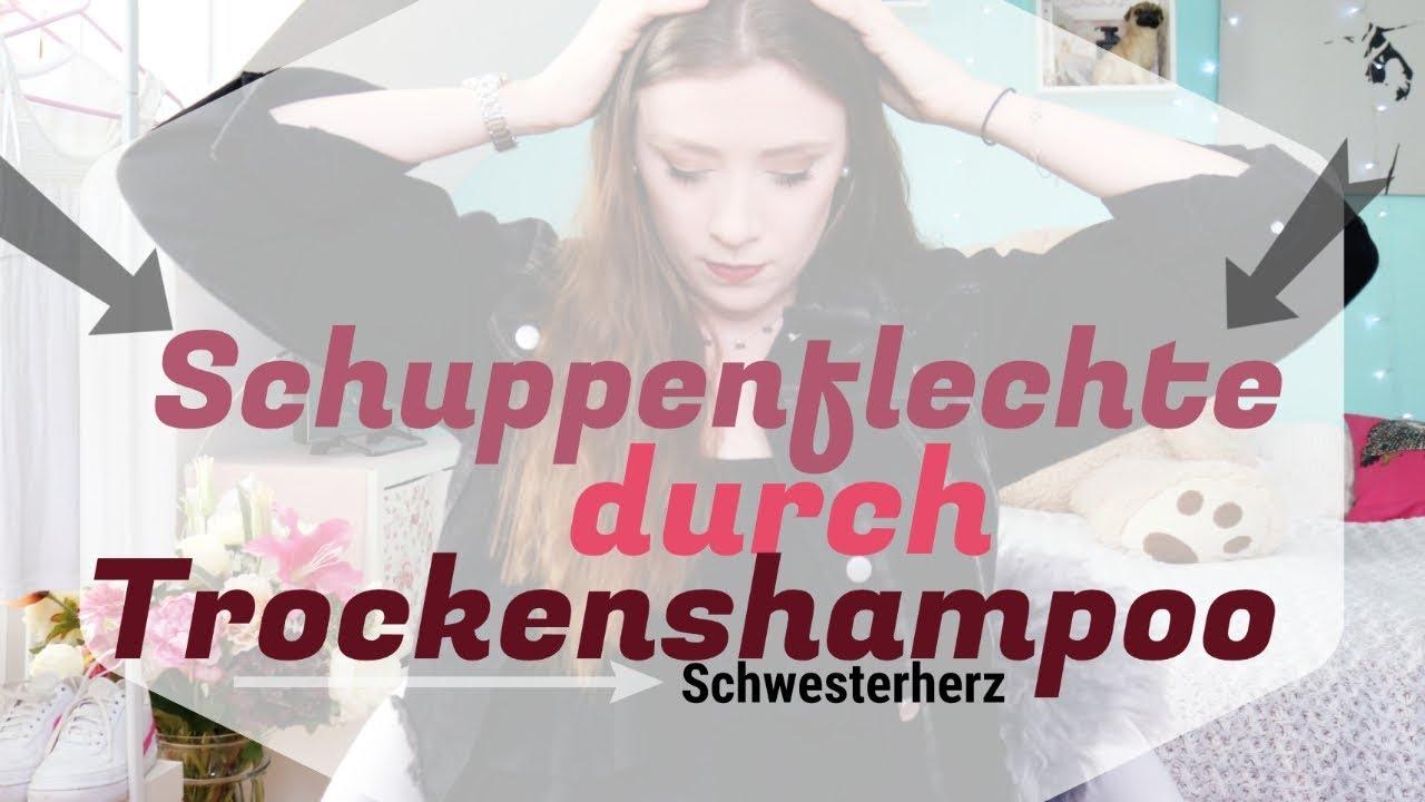 SCHUPPENFLECHTE durch TROCKENSHAMPOO   MEINE ERFAHRUNGEN   TIPPS & TRICKS
