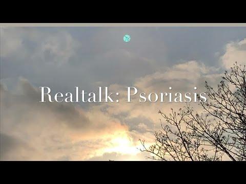 REALTALK! Schuppenflechte/Psoriaris| Meine Krankheit