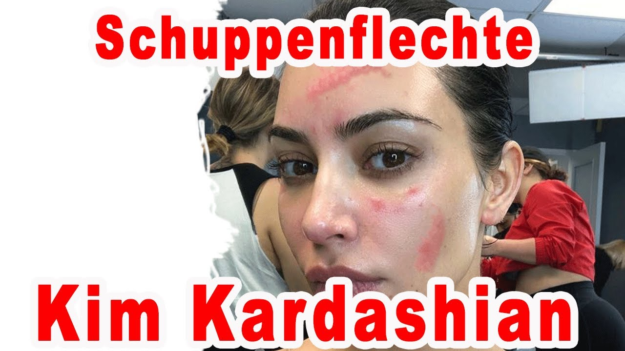 Schuppenflechte Kim Kardashian