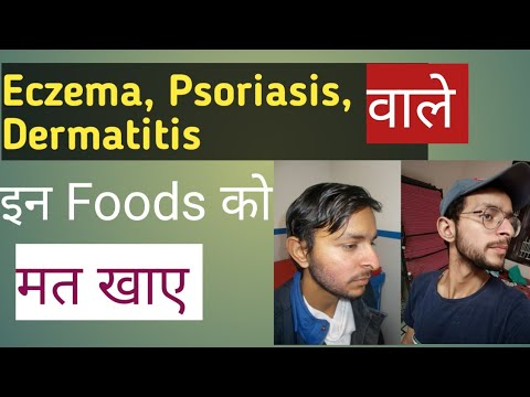 3 foods to avoid /Cure Eczema, psoriasis, dermatitis Naturally