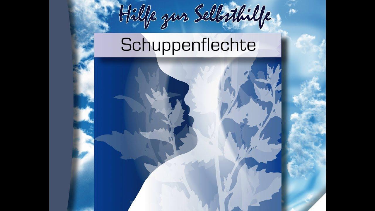 Kurt Tepperwein - Tiefenentspannung:  Schuppenflechte [Hörspiel]