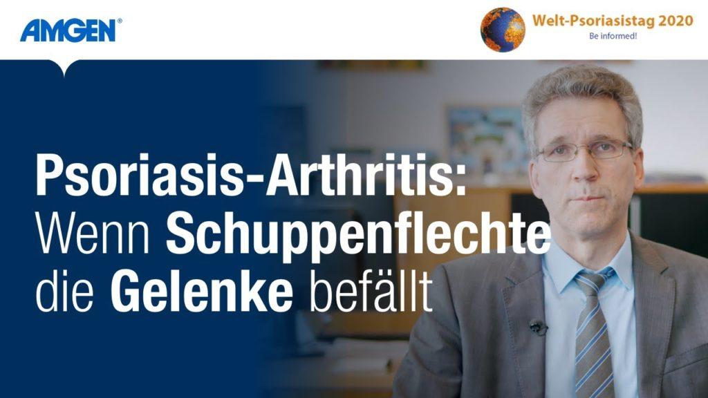 Psoriasis-Arthritis – Wenn Schuppenflechte die Gelenke befällt   Amgen