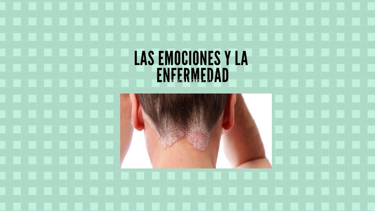 """Psoriasis """"El origen emocional"""""""