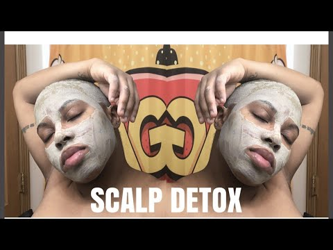 TREATING DRY ITCHING SCALP/PSORIASIS || SCALP DETOX
