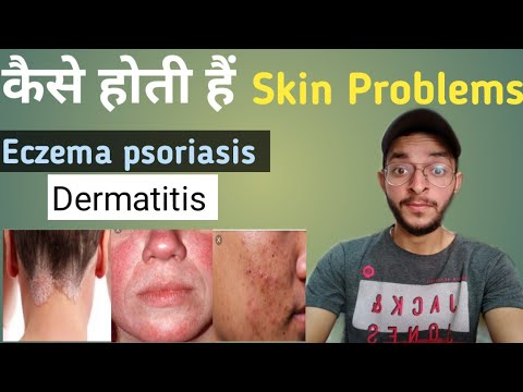 कैसे होती है! Skin Problems| Eczema, Psoriasis, Dermatitis and other skin problems/truth only