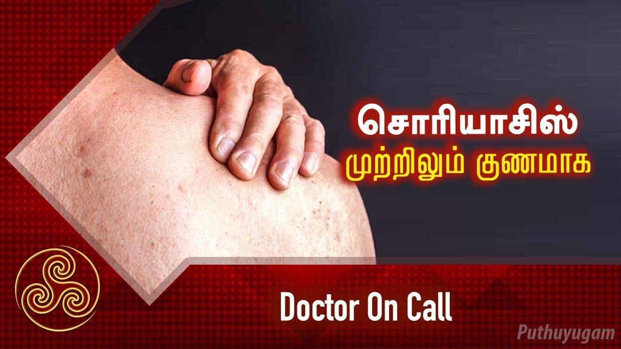 சொரியாசிஸ் முற்றிலும் குணமாக! psoriasis   Doctor On Call   04/04/2019