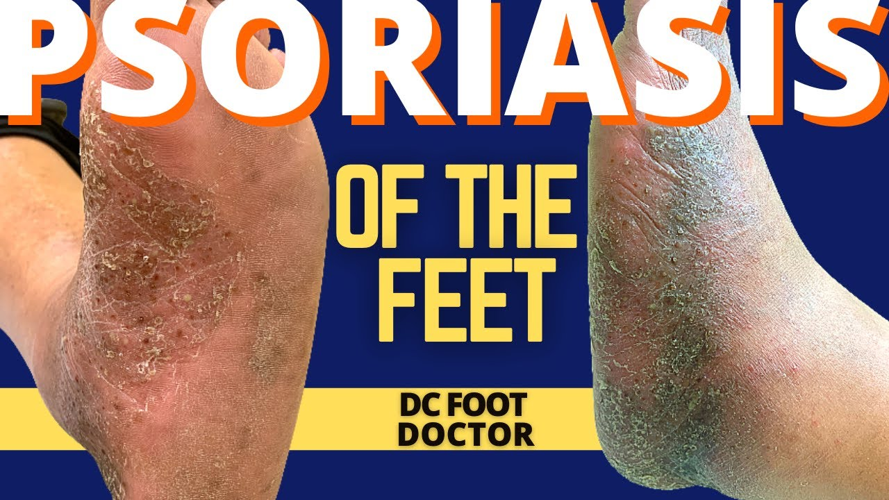Psoriasis and the Feet, Part 2: Treating Pustular Psoriasis of the Skin