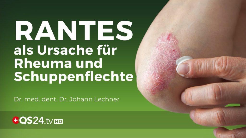 RANTES als Ursache für Rheuma und Schuppenflechte   Dr. med. dent. Dr. Johann Lechner   NaturMEDIZIN