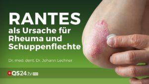 RANTES als Ursache für Rheuma und Schuppenflechte | Dr. med. dent. Dr. Johann Lechner | NaturMEDIZIN