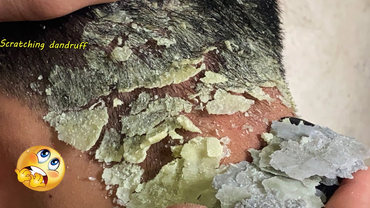 SCRATCHING DANDRUFF  || Scalp  Psoriasis treatment  #K93