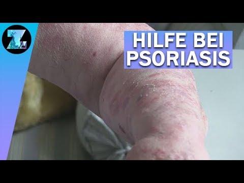 'Psoriasis': Die Hautkrankheit, die brandmarkt