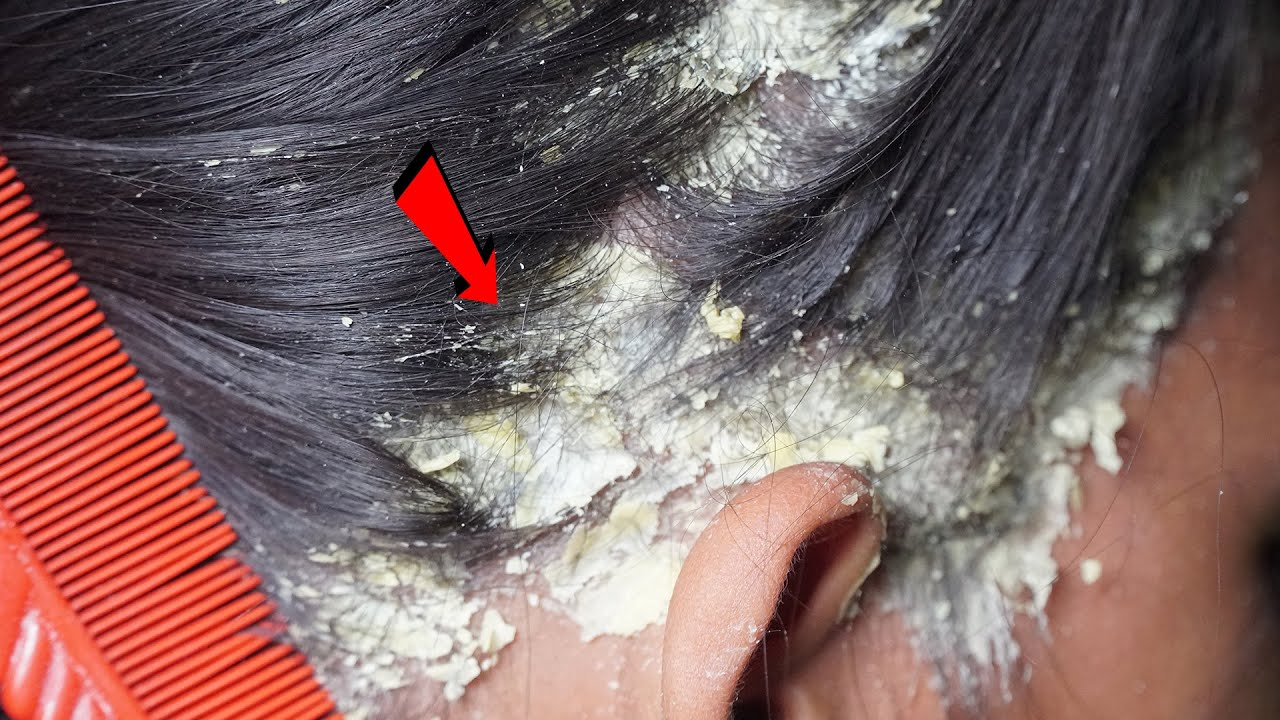 Dandruff Shampoo and Scratching, Itchy Dry Scalp, Huge Flake   Psoriasis #265