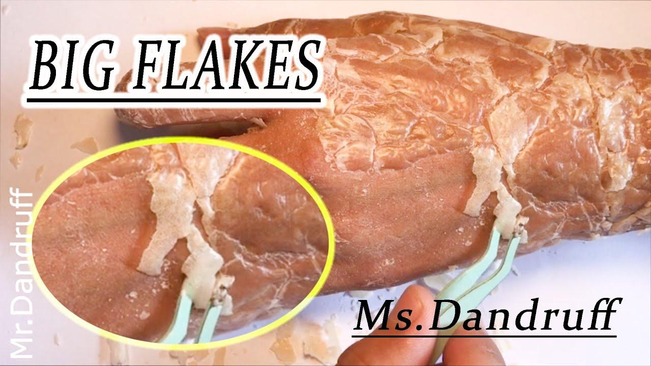 #Psoriasis #flaky #itchyFrosted Skin Flakes - [Psoriasis, Peel, Scrape] #skin3