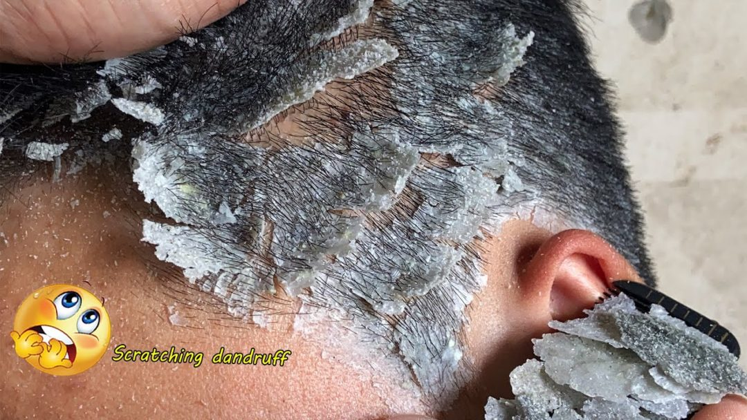 SCRATCHING DANDRUFF  || Scalp  Psoriasis treatment  #K83