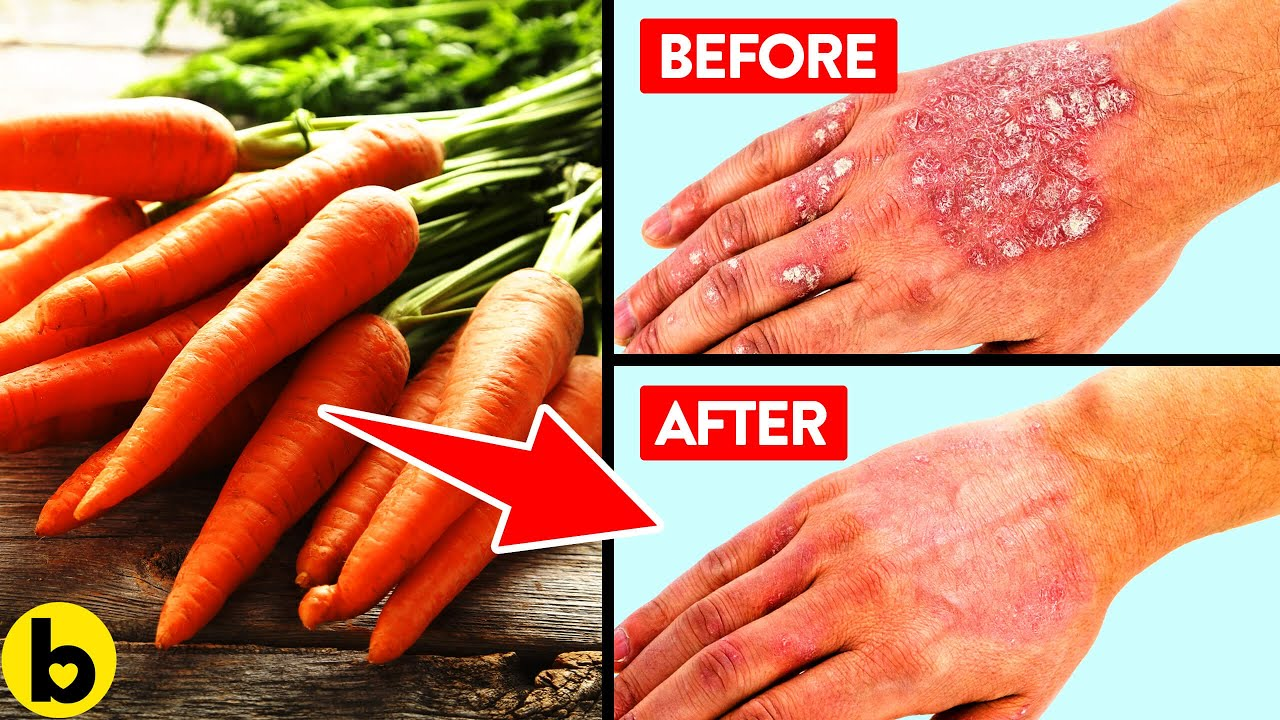 14 Foods That Are Great For Fighting Your Psoriasis