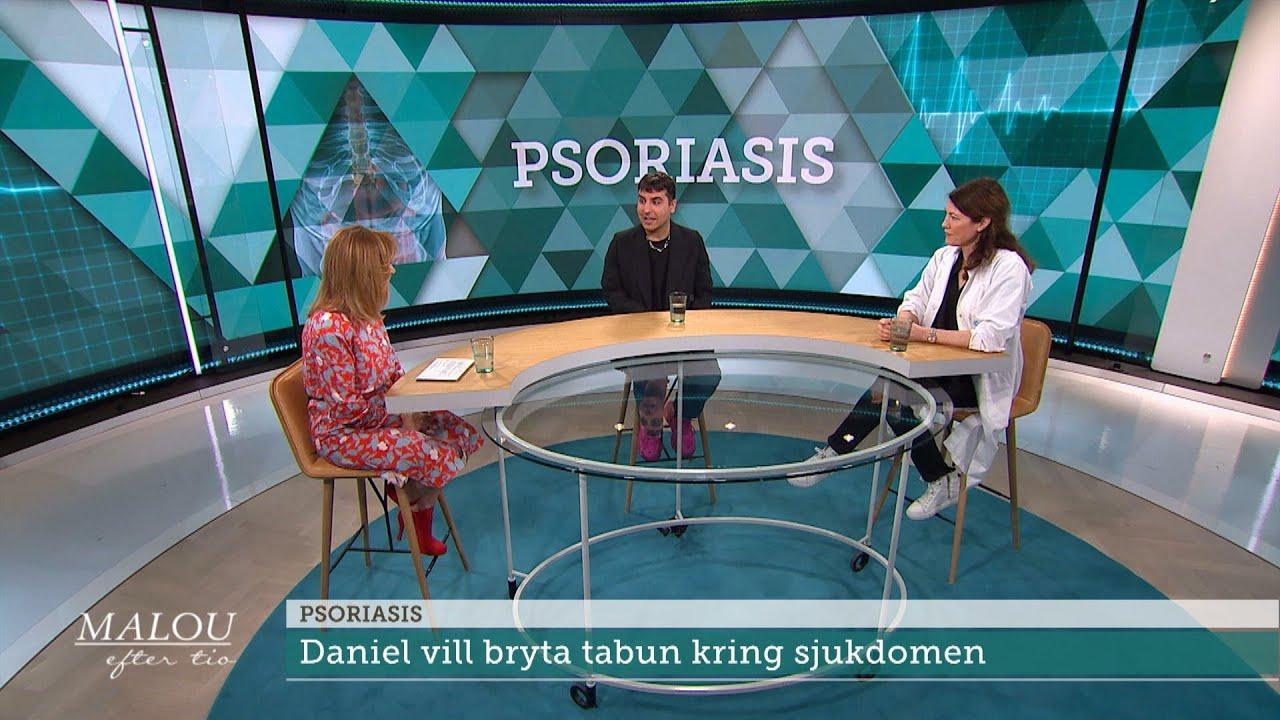 """Influencern vill bryta tabun kring psoriasis: """"Otroligt jobbigt"""" - Malou Efter tio (TV4)"""
