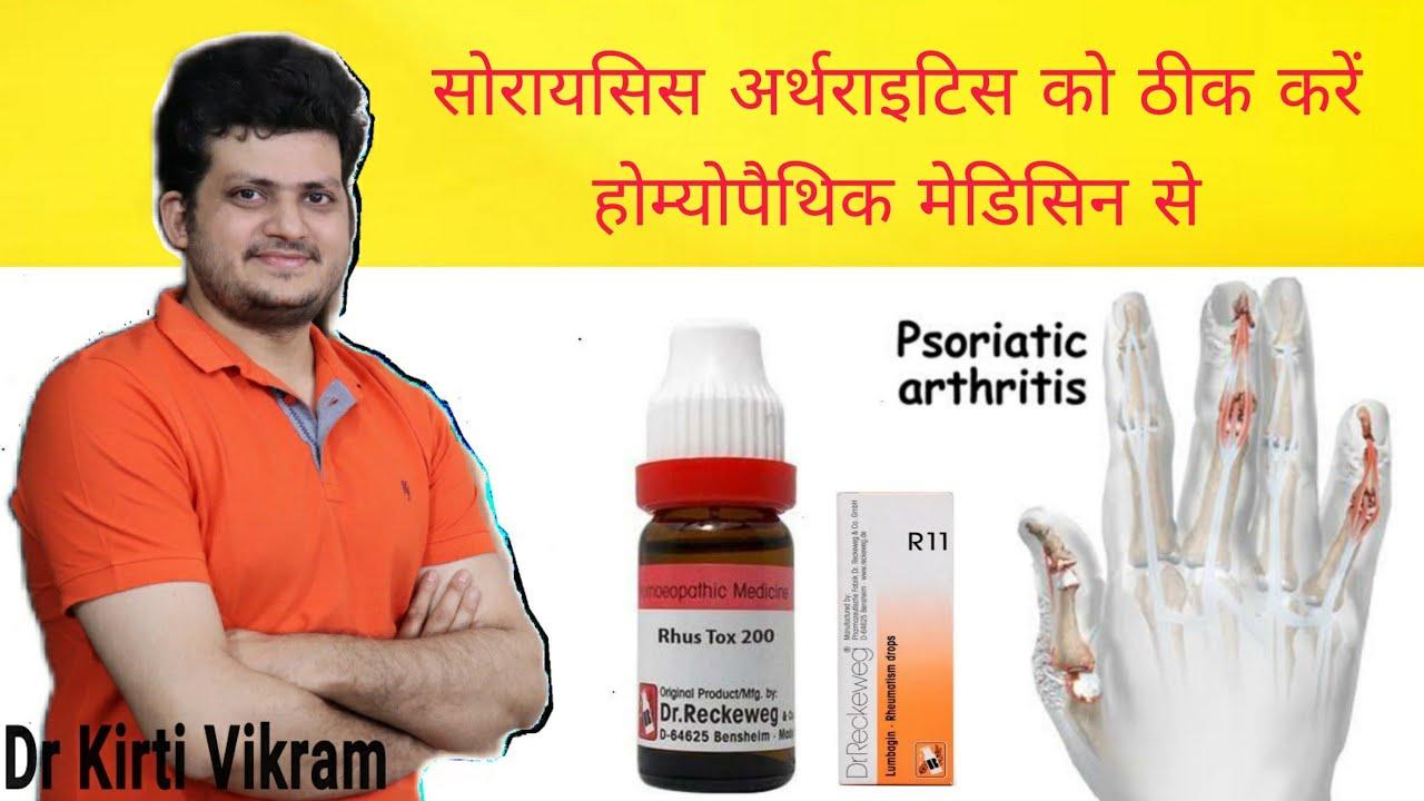 Psoriasis arthritis | Homeopathic Medicine for Psoriasis Arthritis ?