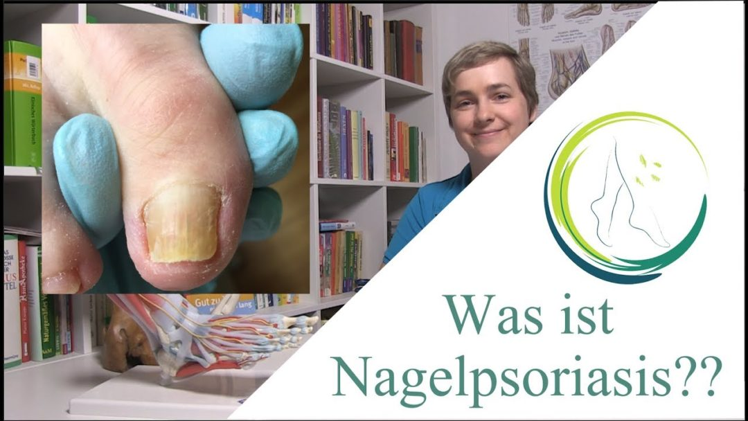 Was ist Nagelpsoriasis?