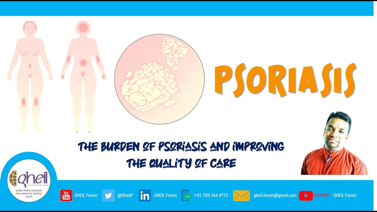 Psoriasis - The burden of Psoriasis and Improving the Quality of Care - Episode 8