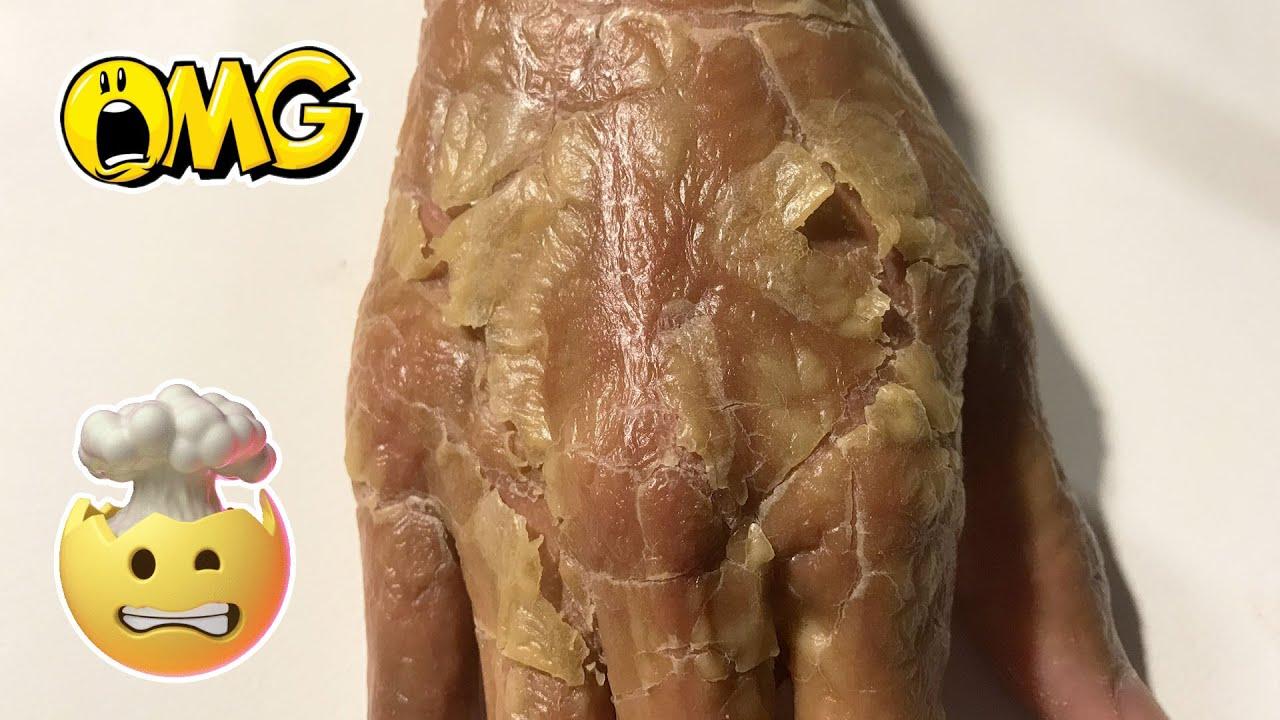 #skin45 #Psoriasis #flaky #itchyFrosted Skin Flakes - [Psoriasis, Peel, Scrape]