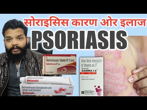 सोरायसिस के कारण लक्षण ओर इलाज / Psoriasis Cause, Symptoms & Treatment In Hindi