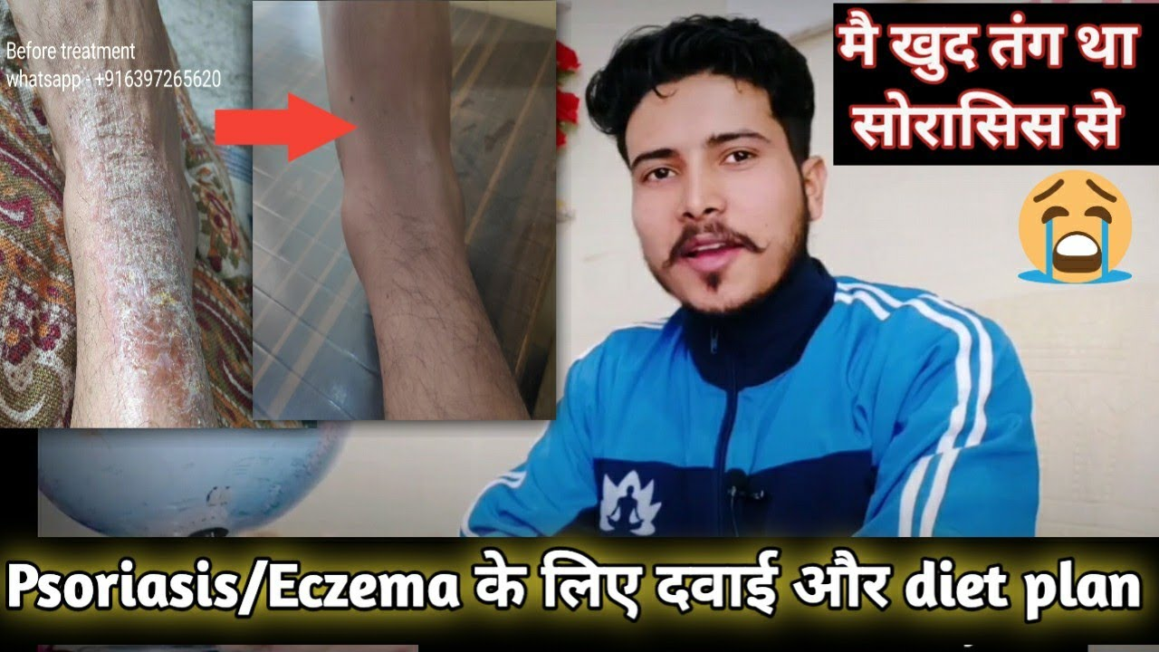 Eczema permanent cure, diet plan with do and don'ts for psoriasis patient | My personal experience