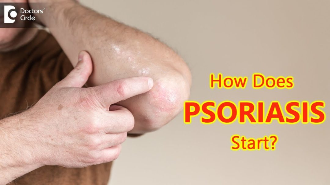 How does psoriasis start? Main Causes & Symptoms - Dr. Chaithanya K S    Doctors' Circle