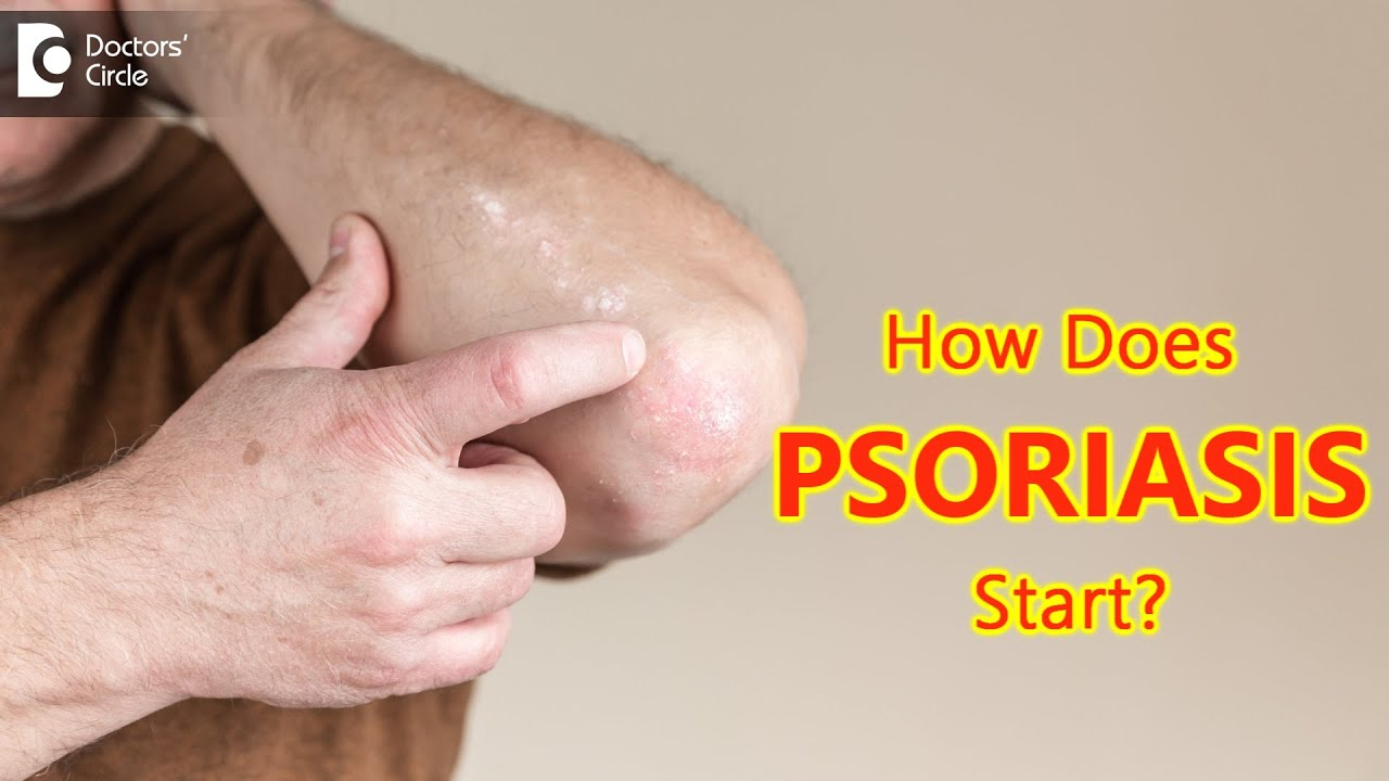 How does psoriasis start? Main Causes & Symptoms - Dr. Chaithanya K S  | Doctors' Circle