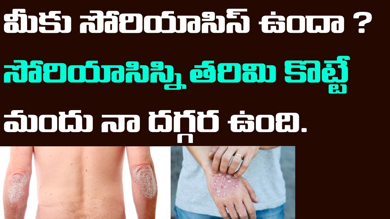 Medicine For Psoriasis | Cure Psoriasis Permanently | Ayurvedic Treatment For Psoriasis |