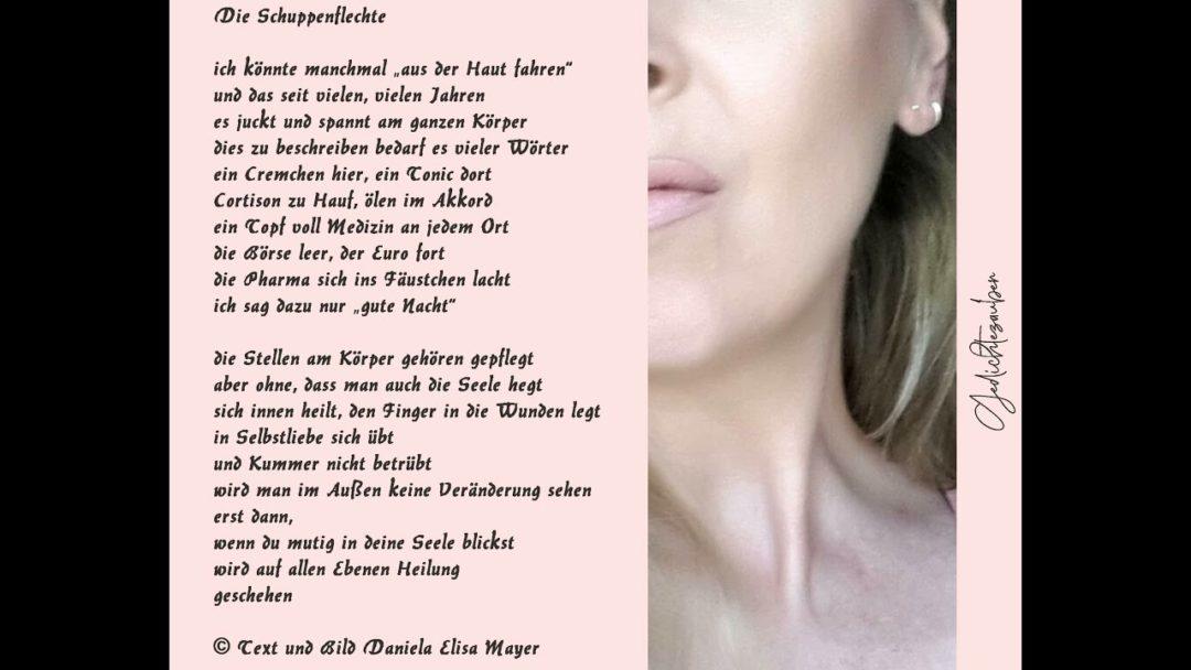"""Neues vom Buchfalter: """"Schuppenflechte"""" - Ein Gedicht von Daniela Elisa Mayer"""