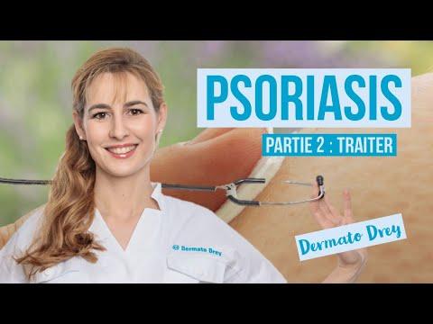 Psoriasis, partie 2 : soigner ! Tous les traitements disponibles #DermatoDrey