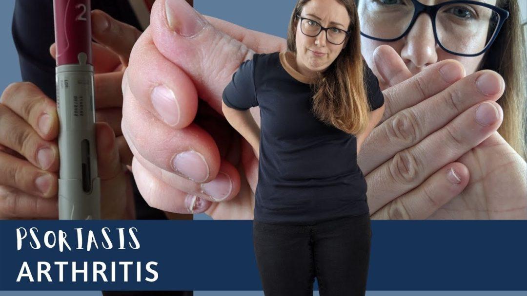 Schuppenflechte im Rücken und an den Nägeln | Humira Injektion und Nebenwirkungen | TATTA Family