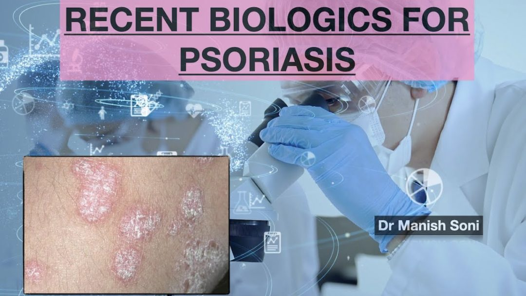 WHAT'S NEW IN TREATMENT OF PSORIASIS : RECENT BIOLOGICS FOR PSORIASIS