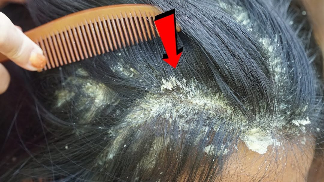 Dandruff Scratching, Itchy Dry Scalp, Huge Flakes, Psoriasis Treatment and Remove #578