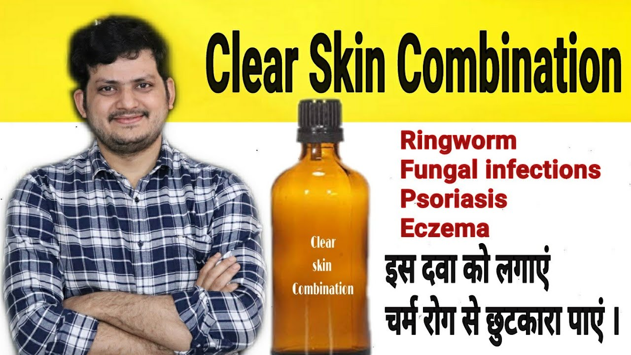 Homeopathic Clear skin Combination | Fungal Infections ringworm Psoriasis Skin disease Eczema |