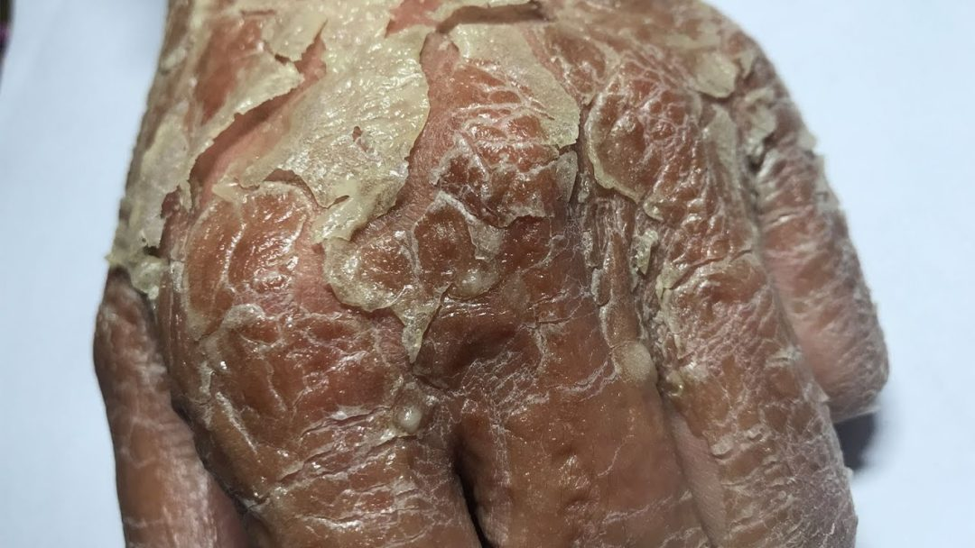 #Psoriasis #flaky #itchyFrosted Skin Flakes - [Psoriasis, Peel, Scrape]5