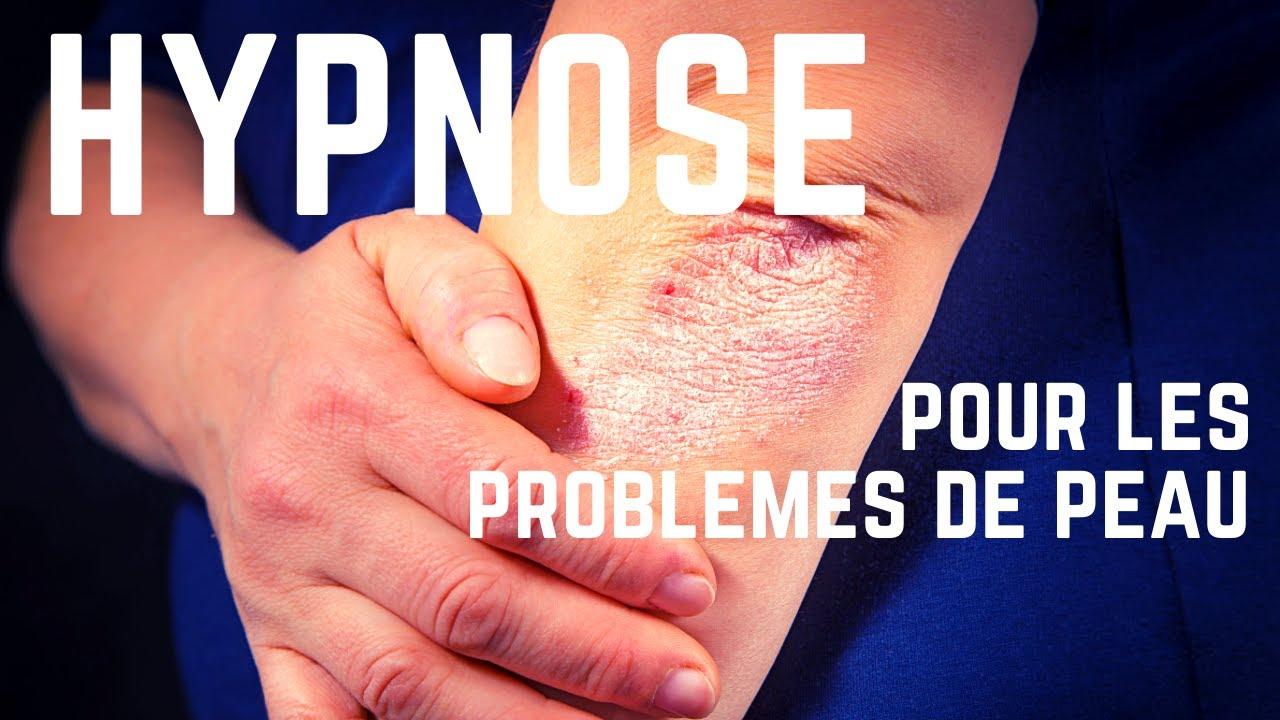 Séance d'hypnose contre les problèmes de peau (psoriasis, eczéma...)