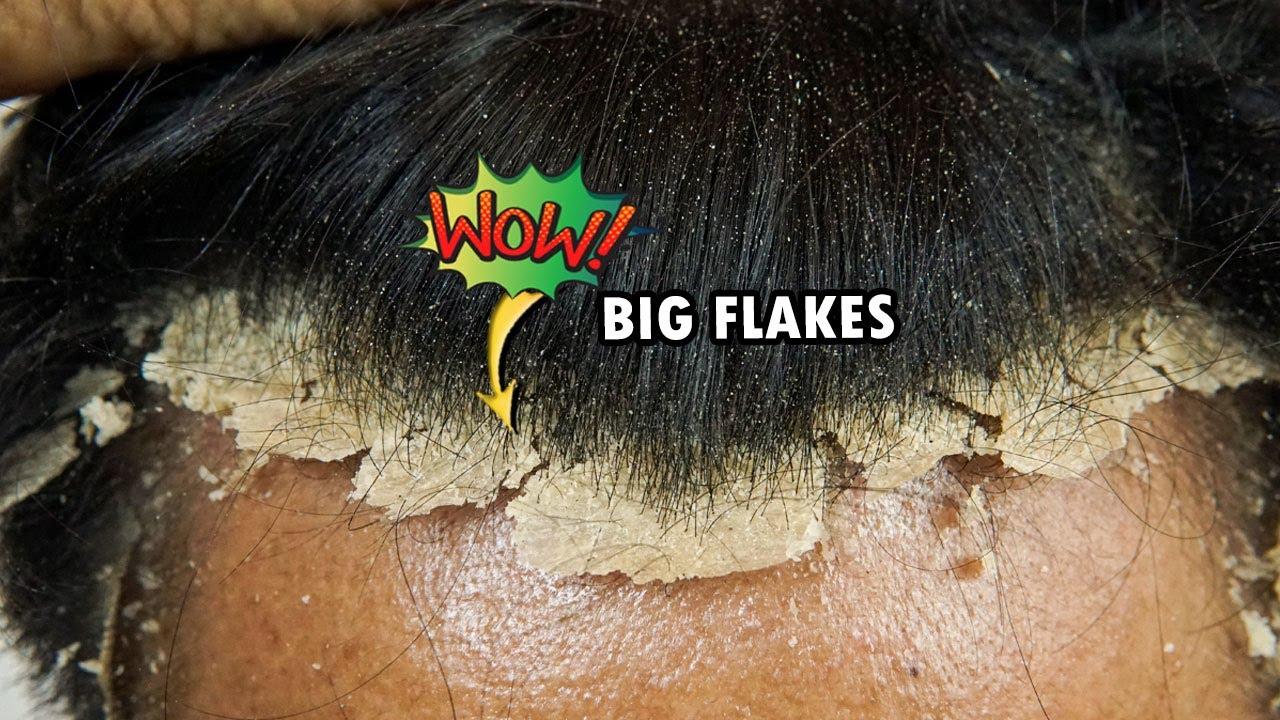 Wow! Psoriasis Scalp Scratching Big Flakes #749
