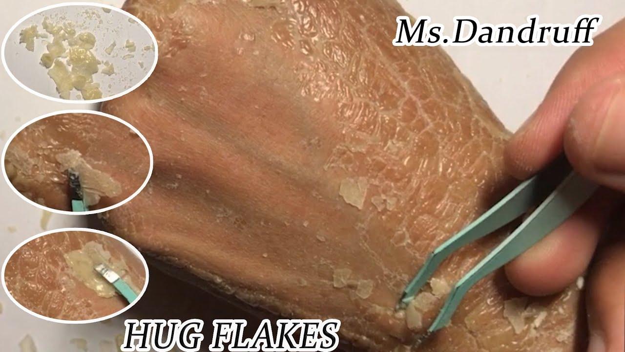 #skin2 #Psoriasis #flaky #itchyFrosted Skin Flakes - [Psoriasis, Peel, Scrape]