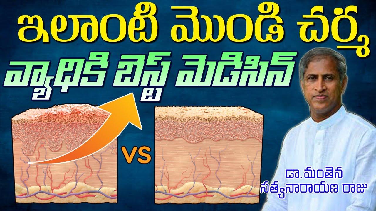 ఇలాంటి మొండి చర్మ వ్యాధికి బెస్ట్ మెడిసిన్  Psoriasis Best Medicine   Dr Manthena Satyanarayana Raju