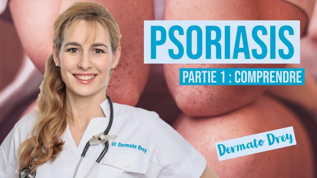 Psoriasis, partie 1 : comprendre les causes et lutter ! #DermatoDrey