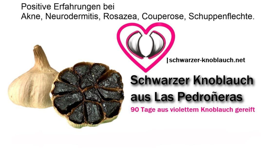 Akne, Neurodermitis, Rosazea, Couperose, Schuppenflechte - Seife mit schwarzem Knoblauch