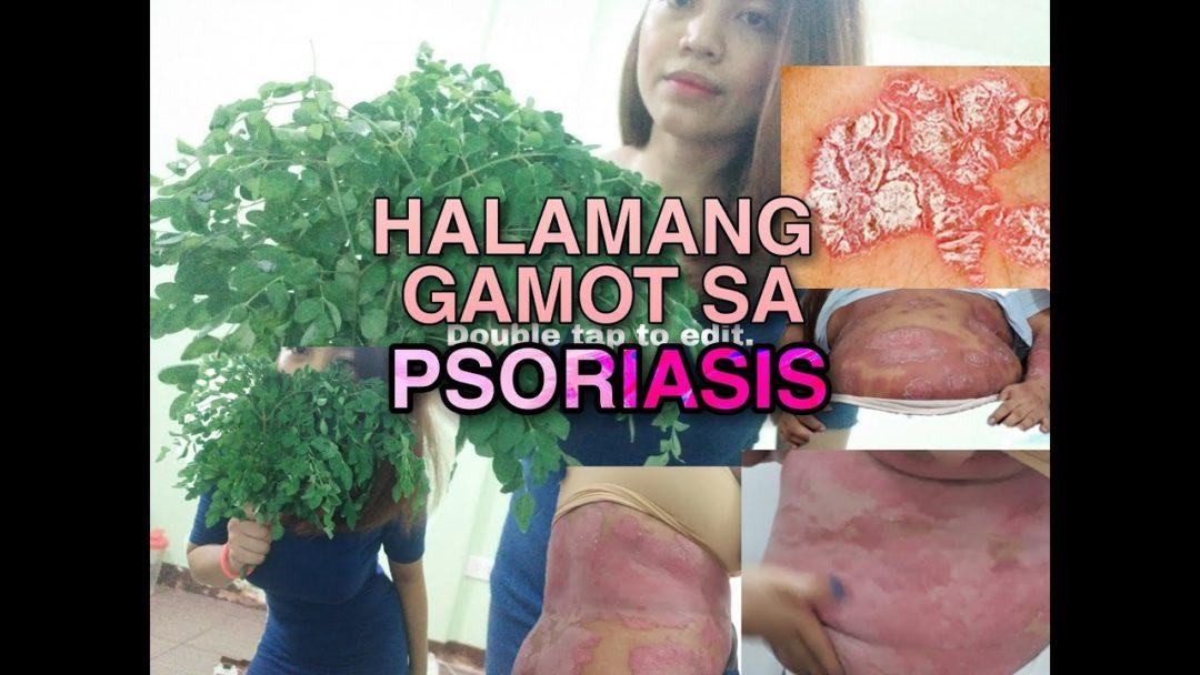 GAMOT REMEDY SA PSORIASIS | FILIPINAS WORLD